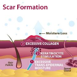 acne scar formation