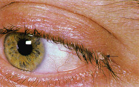 Skin tag on eyelash line