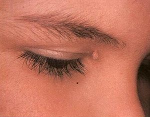 warts near eyes