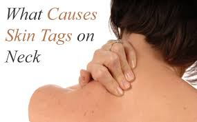 what causes skin tags around the neck