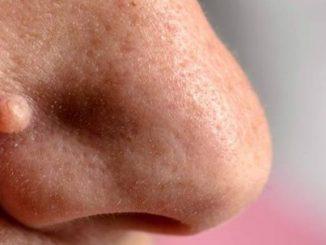 skin mole