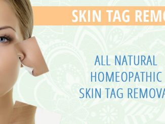 skin tag removal product