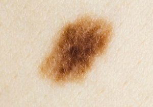 How To Get Rid Of Skin Moles Overnight