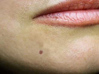 permanent face mole removal
