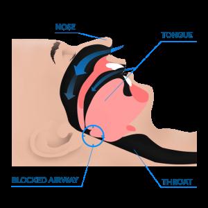 snoring blocked airway