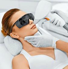laser upper lip hair removal