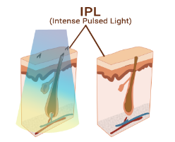 ipl technology