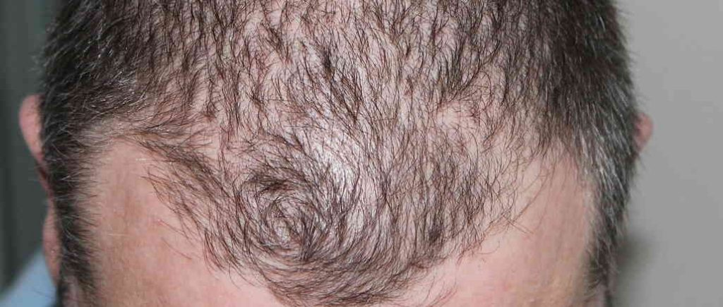 Men baldness