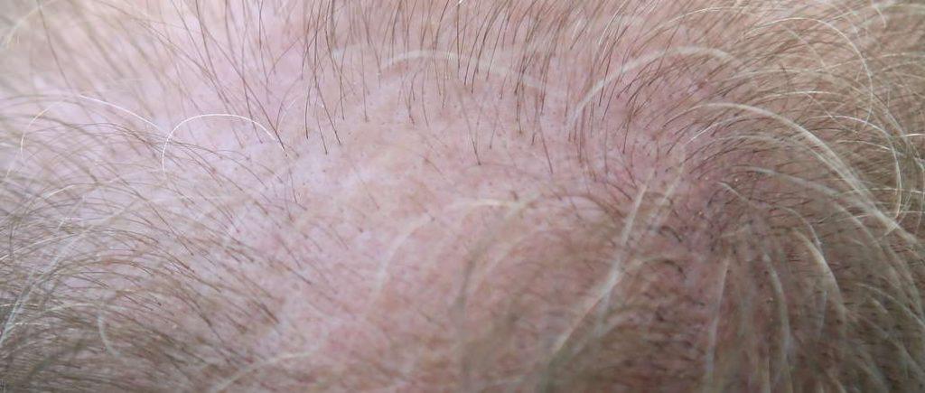 bald spot area