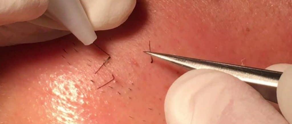 electrolisis hair removal