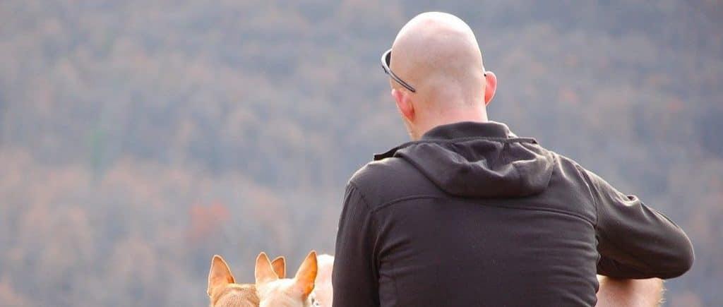 man baldness